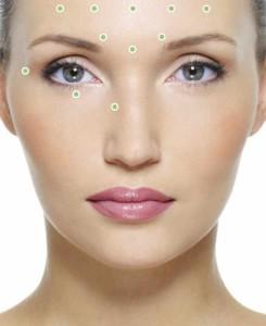 injekzii botoxa